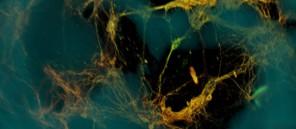 brain-tissue-Tufts