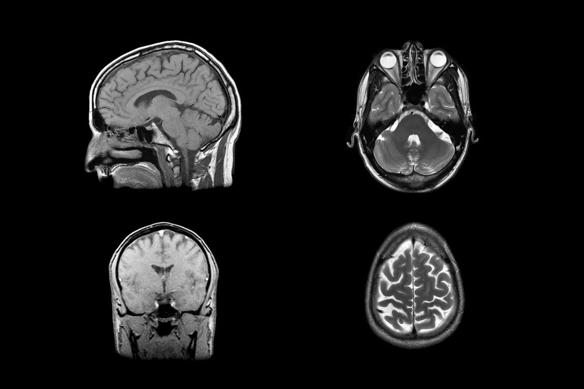 Alzheimers-adaptable-brain-scans