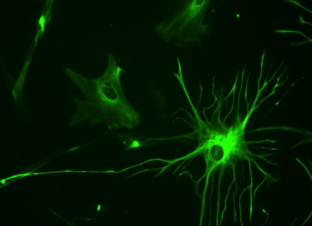 data-brain-synapses